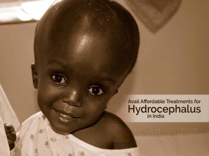 Treatments for Hydrocephalus in India